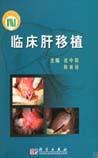 《临床肝移植》在线阅读